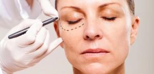 cirurgia-plastica-de-palpebras